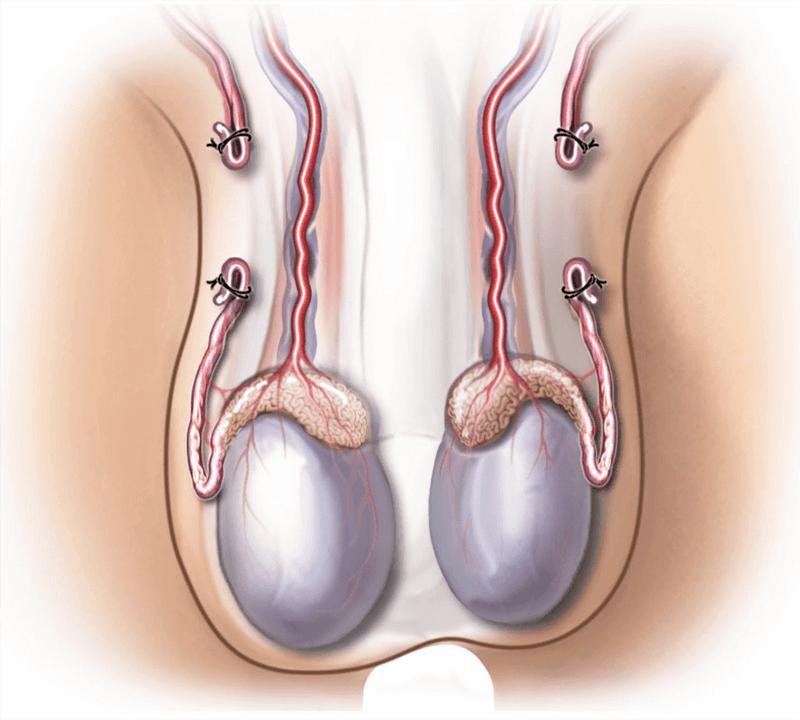 The Stallion Kadoo: Sterilization or Castration?
