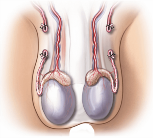kadreversing-a-vasectomy-illustration-76f368